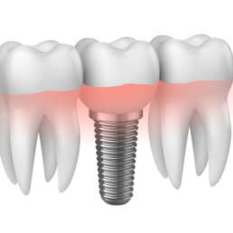 Zahnprotese Grafik