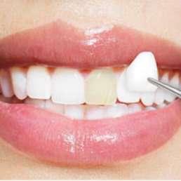 Pinzette hält Zahnveneer vor Zähne