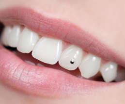 Zahnschmuck Nahaufnahme
