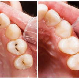 Zahnfüllungen vorher nachher Bild